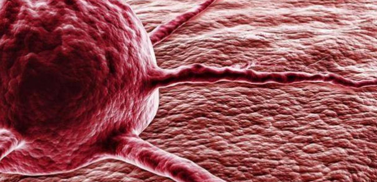 Կրծքագեղձի քաղցկեղի հայտնաբերման նոր անալիզը կօգնի խուսափել ոչ անհրաժեշտ վիրահատություններից