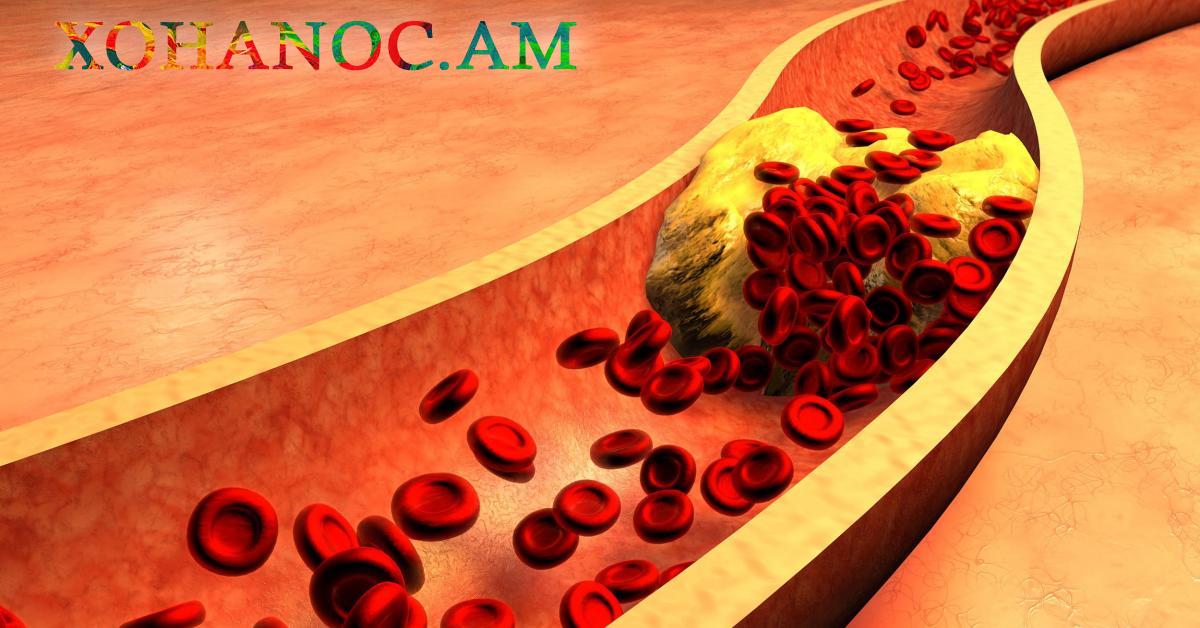 Դարչին և վարսակի փաթիլներ․ Այս բաղադրատոմսը կօգնի ձեզ նվազեցնել խոլեստերինի մակարդակը արյան միջից