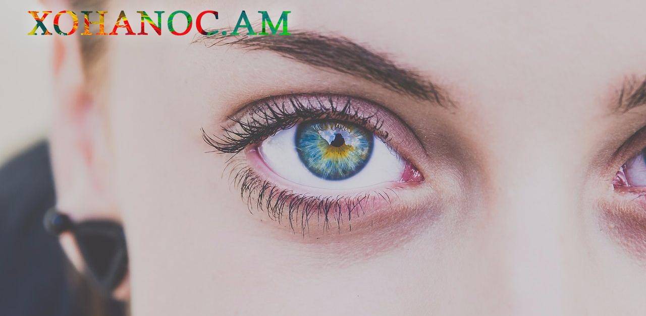 Ինչպես ազատվել աչքերի քորից, որի արդյունքը կարող է լինել ալերգիան և ոչ մաքուր միջավայրը
