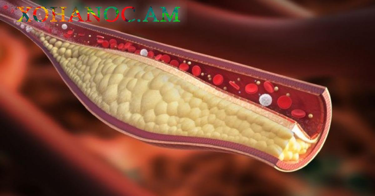 Ինչպե՞ս լավացնել արյան շրջանառությունը, մաքրել անթները և ազատվել բարձր ճնշումից