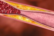 Այս միջոցը նվազեցնում է խոլեստերինի մակարդակը արյան մեջ, ազդում է ապրելակերպը փոխելու ժամանակ