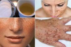 Այս բնական միջոցը կօգնի ձեզ մաշկի գույնը հավասարեցնելո և պիգմենտային հետքերից ու պեպեններից ազատվել