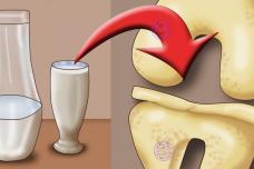 Այս բաղադրատոմսը ամենակարճ ժամկետում բուժում է ծնկներն ու վերականգնում ոսկորներն ու հոդերը. Լավագույն միջոցը