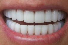 Այլևս ատամնաբուժարան գնալու կարիք չի լինի․ Մեկընդմիշտ ազատվեք ատամների փառից