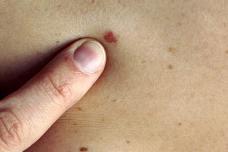 Քաղցկեղի 14 ամենավտանգավոր նշանները, որոնք մարդիկ սովորաբար անտեսում են