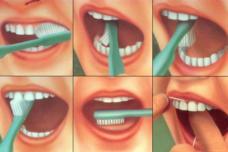 Բերանի խոռոչի հիգիենան. ինչպես խուսափել լուրջ հիվանդություններից ու տհաճ հոտից