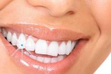 Ինչպե՞ս վերացնել ատամի ցավը, ճերմակեցնել ատամները և  այլ հիանալի խորհուրդներ կապված ատամների հետ