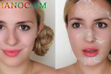 Ընդամենը 2 - 3 օր և ձեր դեմքի սպիները, պզուկները, ուգրիները կվերանան․ Հրաշք քսուք, որը պատրաստվում տնային պայմաններում