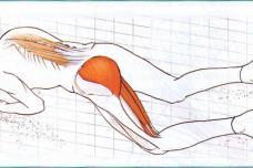 Վերացրեք նստատեղի նյարդի ցավերը ընդամենը 10 րոպեում, այս հրաշք միջոցի շնորհիվ