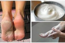 Տան պայմաններում պատրաստվող միջոց՝ ոտքերի սնկերից ու կոշտուկներից ազատվելու համար