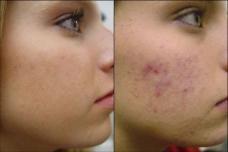 Հարթ և փայլուն մաշկ ընդամենը 5 րոպեում. այս միջոցը հրաշքներ է գործում