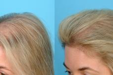 Այս միջոցը կօգնի կանգնեցնել մազաթափությունը